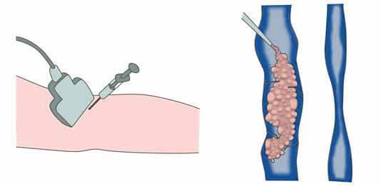 foam form склеротерапия