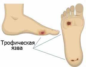 Лечение трофической язвы на ногах