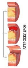 показания к эндартерэктомии