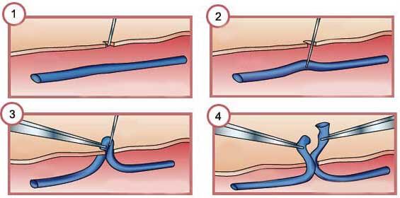 операция флебэктомия