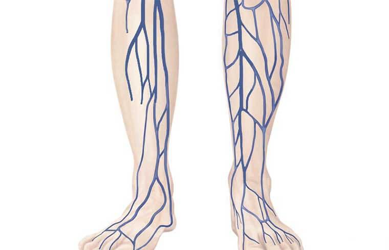 Варикозная трансформация большой подкожной вены: притоков БПВ, нижних конечностей, деформация, лечение