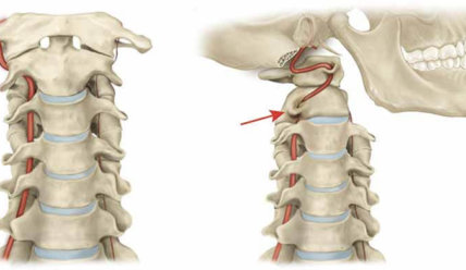 Синдром позвоночной артерии — причины, симптомы и методы лечения