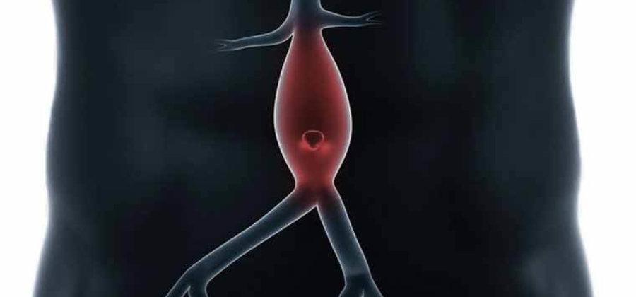 Аневризма аорты: причины, симптомы и методы лечения