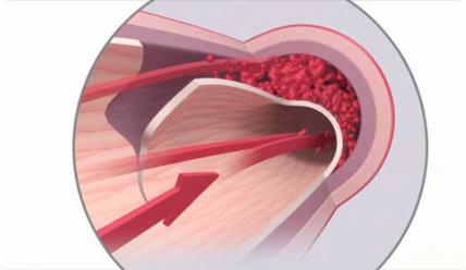 Расслоение аорты — причины и механизм развития, виды патологии и ее лечение