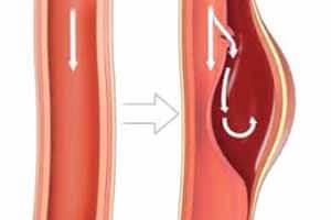 причины расслоения аорты