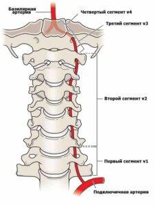 сегменты позвоночной артерии