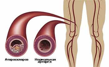 атеросклероз бедренной артерии