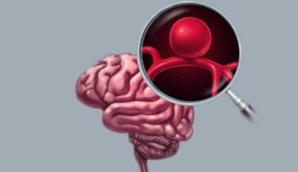 Аневризма сосудов головного мозга: симптомы, диагностика и лечение