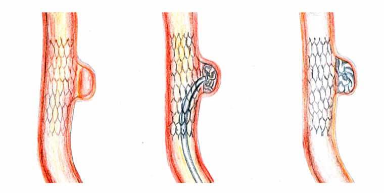 операция при аневризме сосудов головы