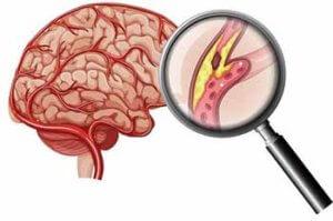 патологии артерий головы и шеи