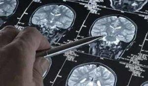 диагностика аневризмы сосудов мозга